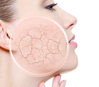 Problemy z suchą skórą - jak sobie z nią radzić?